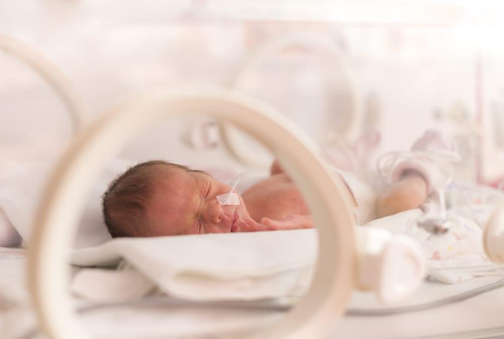 prematuridade - foto stock