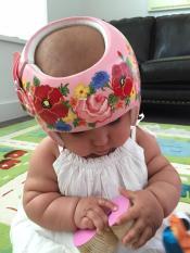 Assimetria craniana: prevencão, causas capacetes mais amorosos